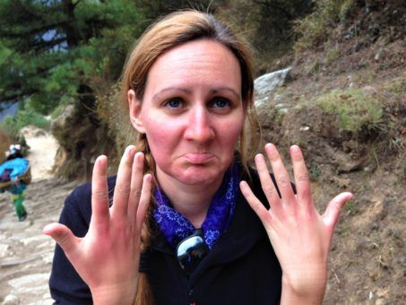 Showing off sunburnt hands while hiking to Everest Base Camp, Nepal